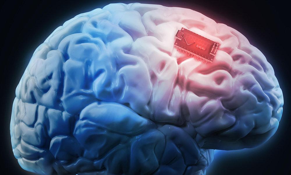 Elon Musk dice que un chip que lee la mente podría estar conectado al cerebro  humano a finales de año - Alerta Geo